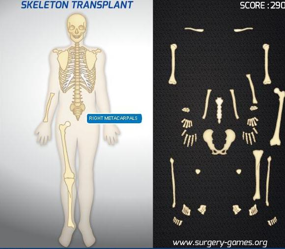 the game skeleton transplant